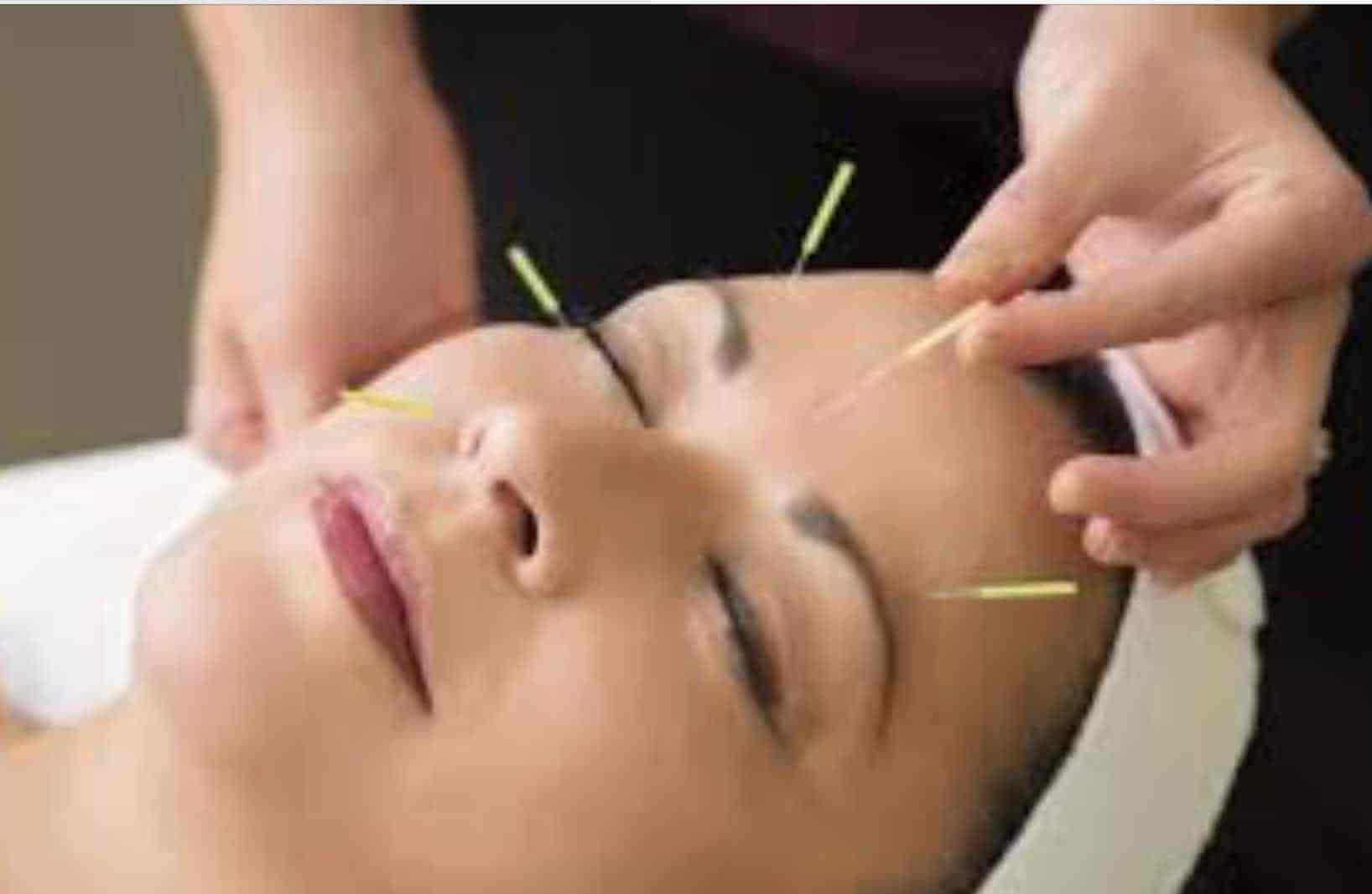 Chinese Acupuncture Cosmetic Laser Clinic Photos, Anna Nagar