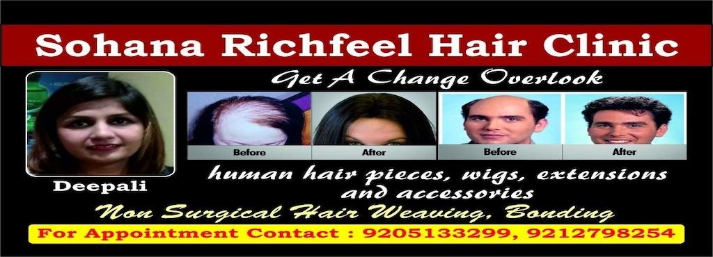 Sohana Richfeel Hair Clinic Rohini Sector 7 Wig Dealers In Delhi