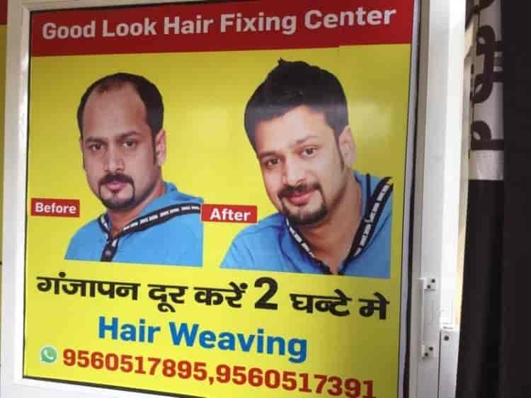 Hair fixing the best hair of 2017 hair fixing in noida sector 18 clinic pmusecretfo Choice Image